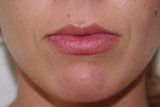 Dermal Filler Before Define Laser Brisbane