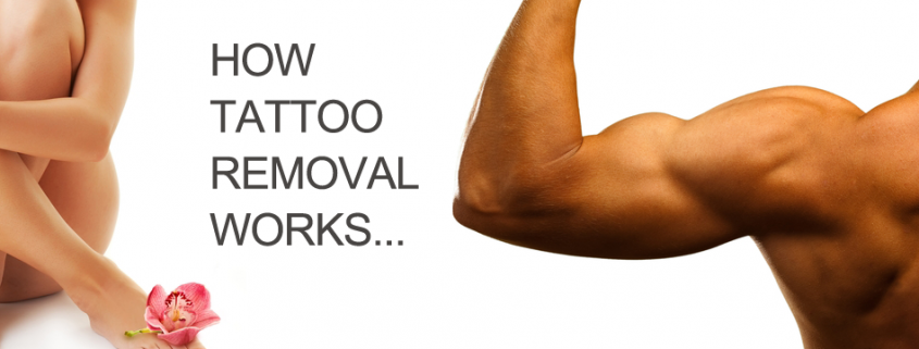 Tattoo Removal at Define Laser & Cosmetic Clinic Albany creek