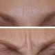 Anti Wrinkle Injections North Brisbane