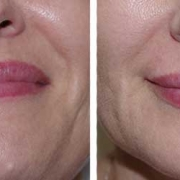 Lip Fillers Brisbane Northside