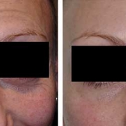 Under Eye Filler Brisbane