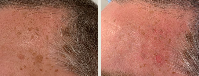 Everything you need to know about laser pigmentation removal